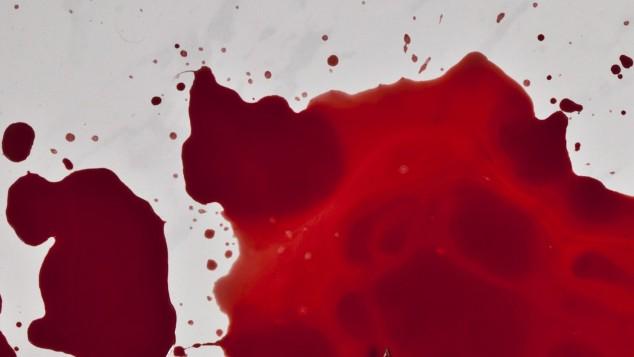 Dunkles blut bei der periode