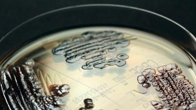 Multiresistente Enterobakterien - in einer Petrischale nachgewiesen. (Axel Hamprecht/IMMIH/dpa)